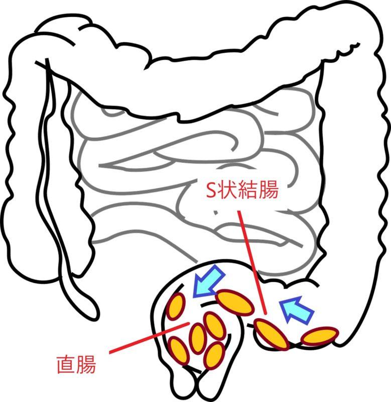 S状結腸、直腸で大便の流れ
